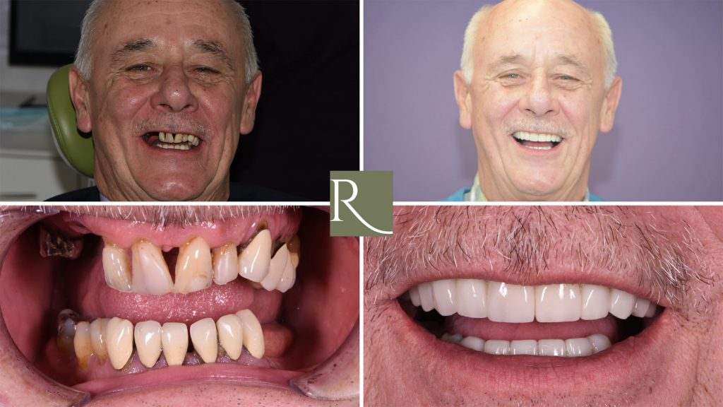 Dental Implants Arthur