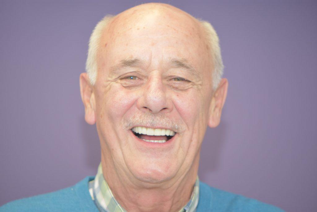 After picture of Arthur, dental implant patient